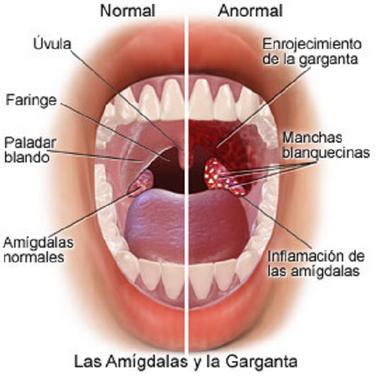 obat faringitis alami